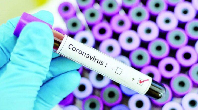 Україна суттєво відстає від решти країн світу за можливостями боротьби з коронавірусом